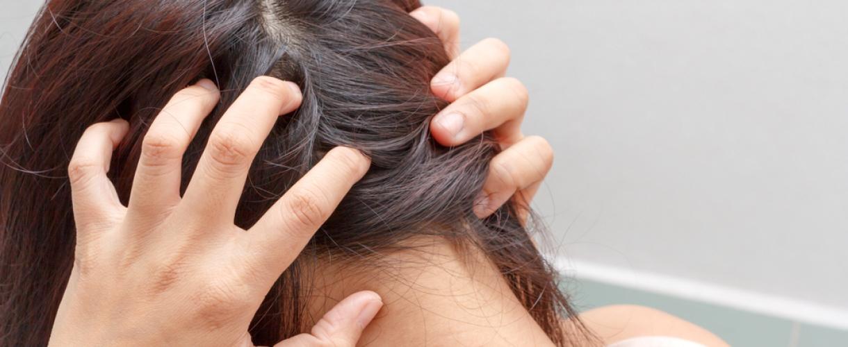 Демодекоз головы – причины, диагностика, лечение