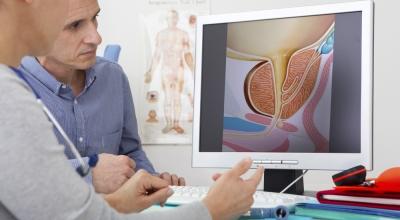 Простатэктомия Да Винчи лечение рака простаты