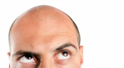 Лечение раннего облысения у мужчин