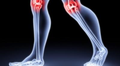 Почему щелкают суставы на ногах