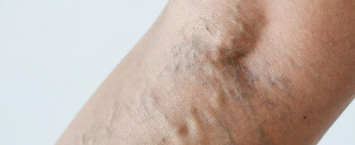 Причины появления и последствия варикозной болезни
