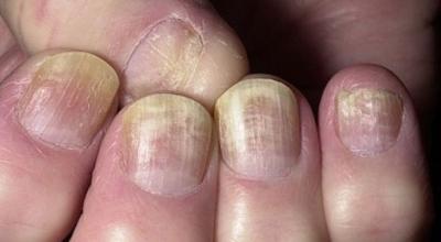 Грибковые заболевания - причины и признаки грибковых заболеваний