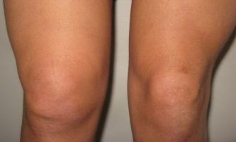 Синовит коленного сустава инфекционист нормальная анатомия и физиология костно-суставного аппарата