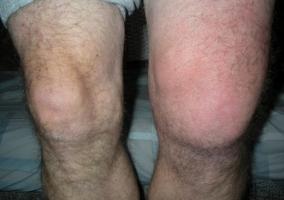 Синовит коленного сустава симптомы лечение вкомплекс физических упражнений при коксартрозе тазобедренных суставов
