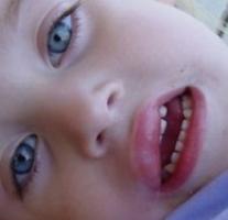 потница у годовалого ребёнка фото