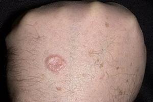 операция эндопротезирование тазобедренных суставов