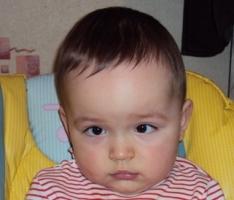 Как выглядят миндалины ребенка фото