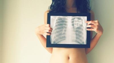 Ушиб грудной клетки: симптомы и лечение