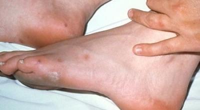 Гонорейный артрит  причины и признаки гонорейного артрита