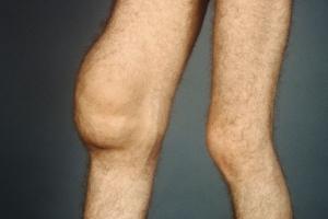 Ворсинчатый синовит коленного сустава соломонова печать купена для суставов