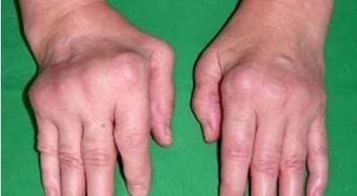 Сексуально связанный артрит симптомы