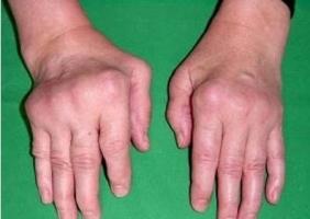Ревматоидный артрит увеличение суставов вправление вывиха плечевого сустава