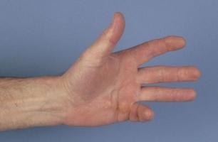 Контрактура или анкилоз крупных суставов санаторий-при заболевании суставов