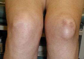 массаж после растяжения голеностопного сустава